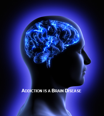 Addiction is Brain Disease-1